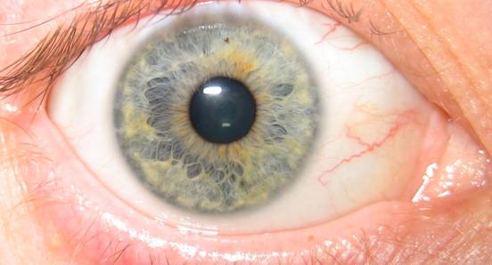 Iridology blue eye