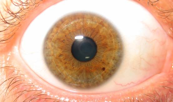 Iridology brown eye